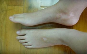 腿部的白癜风早期症状有哪些
